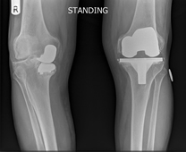 x-ray of failing medial uni-compartmental knee and failing total knee replacement