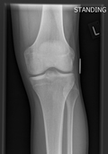 X-ray of a normal knee
